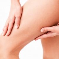 Thigh Dermolipectomy