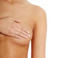 Reduction Mammaplasty